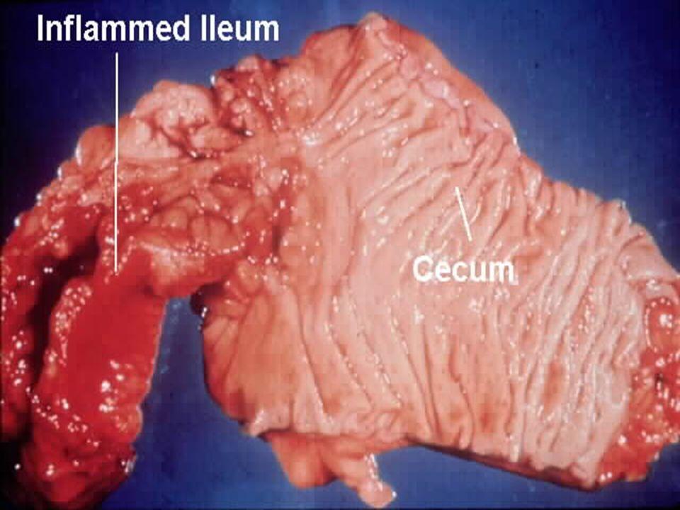 Paralytický ileus/Ogilvie syndrom - etiologie Intraabdominální příčiny Reflexní inhibice (laparotomie, trauma, iatrogenní perforace) Zánětlivé procesy (peritonitis, NSZ, pankreatitida, krvácení, cholecystitis, perforace, toxické megacolon, iradiace, celiakie) Infekce (peritonitida, divertikulitida, apendicitida) Ischémie Retroperitoneální procesy Mimobřišní příčiny: Reflexní inhibice (kraniotomie, míšní léze, nitrohrudní operace, popáleniny, pneumonie) Farmakologicky indukované (opiáty, cytostatika, anidepresiva, Anticholinergika, fenothisziny) Metabolické odchylky (septikémie, minerálový rozvrat, otrave těžkými kovy, porfyrie, uremie, diabetes s ketoacidozou, resp.