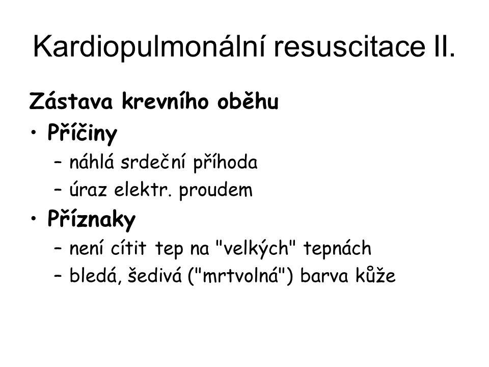 Kardiopulmonální resuscitace II. Zástava krevního oběhu Příčiny –náhlá srdeční příhoda –úraz elektr. proudem Příznaky –není cítit tep na