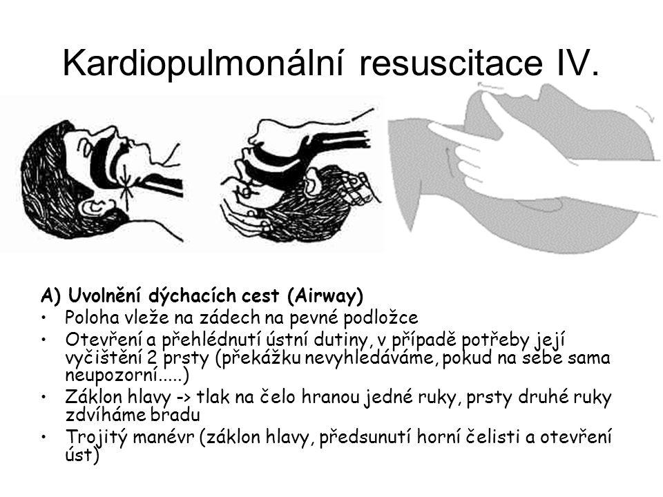 Kardiopulmonální resuscitace IV. A) Uvolnění dýchacích cest (Airway) Poloha vleže na zádech na pevné podložce Otevření a přehlédnutí ústní dutiny, v p