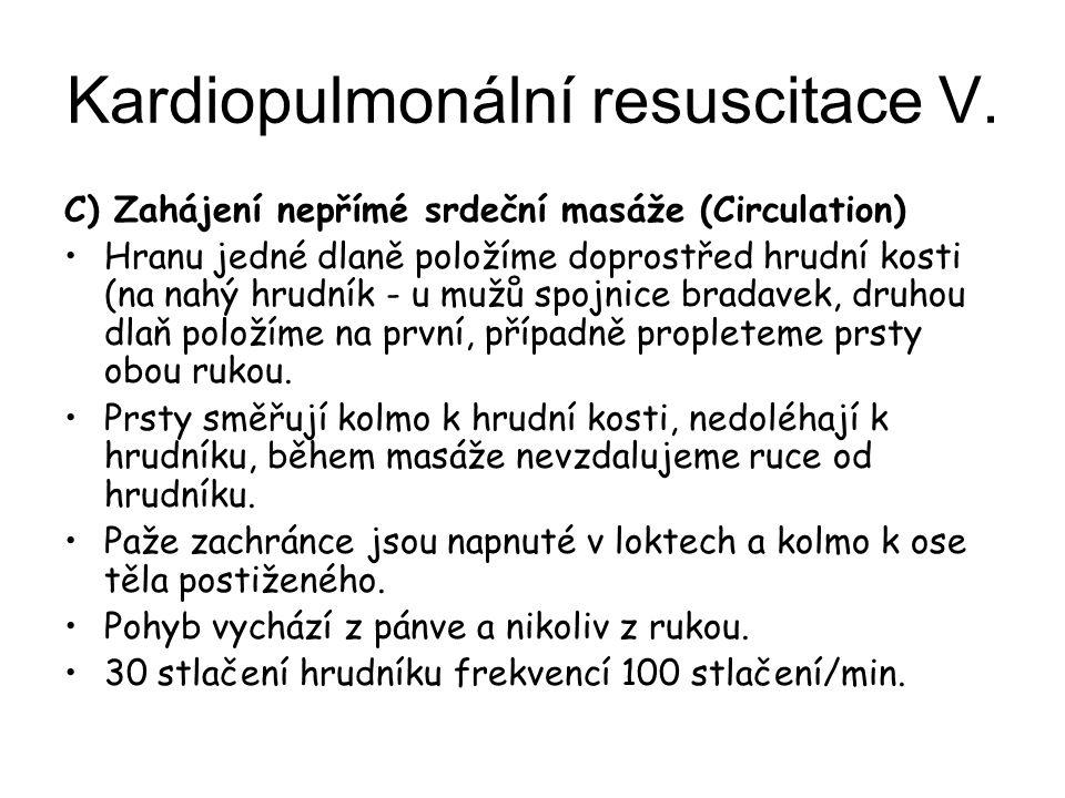 Kardiopulmonální resuscitace V. C) Zahájení nepřímé srdeční masáže (Circulation) Hranu jedné dlaně položíme doprostřed hrudní kosti (na nahý hrudník -