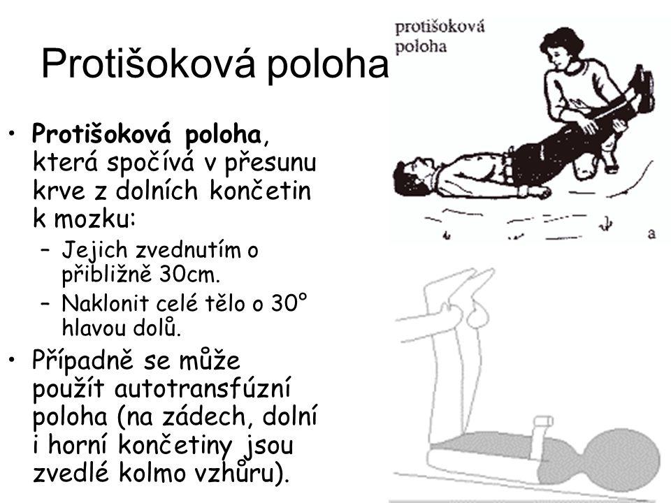 Protišoková poloha Protišoková poloha, která spočívá v přesunu krve z dolních končetin k mozku: –Jejich zvednutím o přibližně 30cm. –Naklonit celé těl