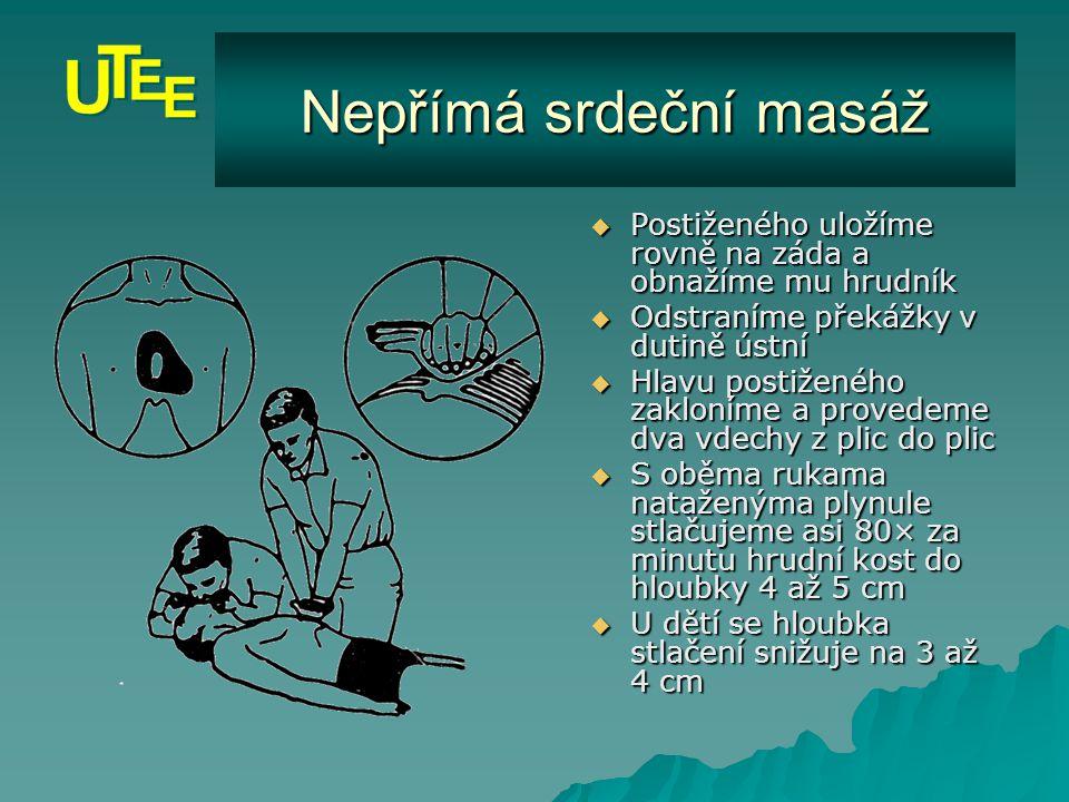 Postižený je v bezvědomí, nedýchá a nemá hmatný tep  Postiženého nepřemísťujeme, pokud není on či zachránce ohrožen prostředím  Neprodleně zahájíme kardiopulmonální resuscitaci (nepřímou masáž srdce spojenou s umělým dýcháním) kardiopulmonální resuscitaci kardiopulmonální resuscitaci  Nezdržujeme se ošetřováním zranění neohrožujících život