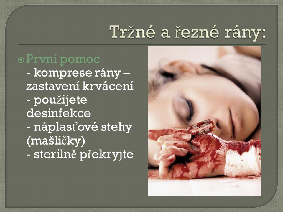  První pomoc - komprese rány – zastavení krvácení - pou ž ijete desinfekce - náplas ť ové stehy (mašli č ky) - steriln ě p ř ekryjte