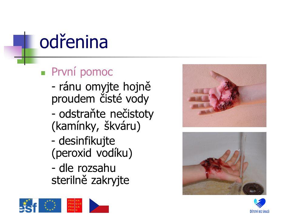 řezné rány První pomoc - komprese rány – zastavení krvácení - použijete desinfekce - náplasťové stehy (mašličky) - sterilně překryjte