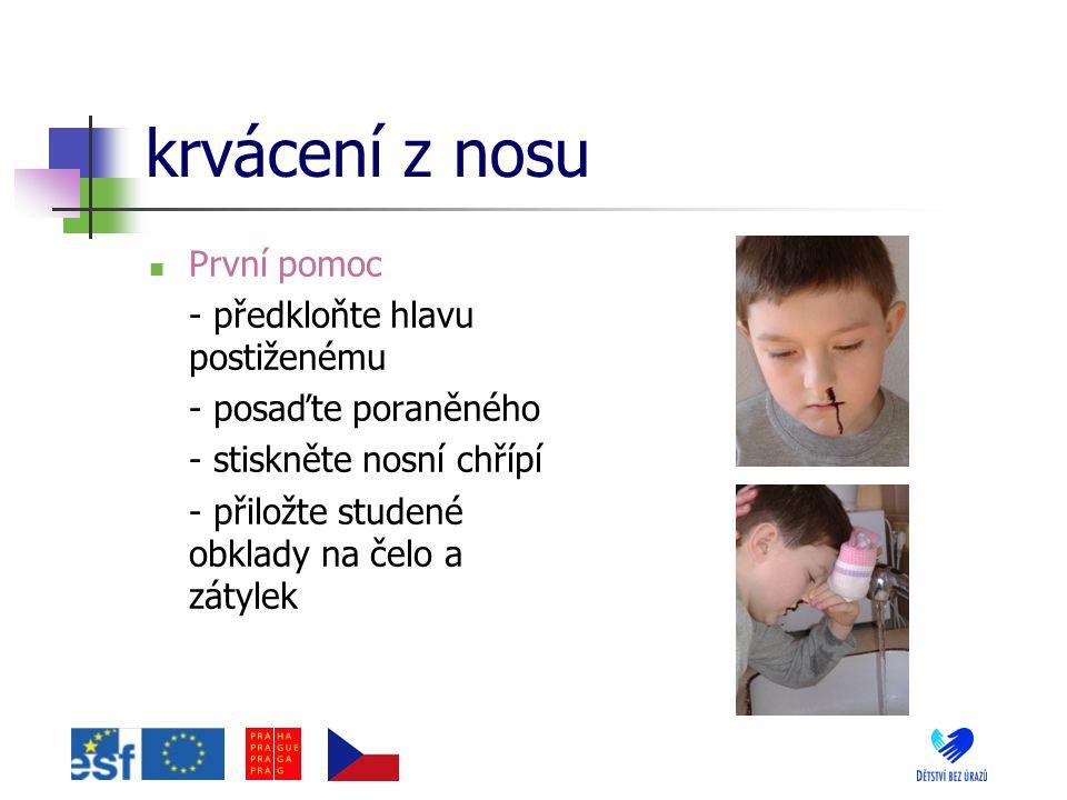 krvácení z nosu První pomoc - předkloňte hlavu postiženému - posaďte poraněného - stiskněte nosní chřípí - přiložte studené obklady na čelo a zátylek