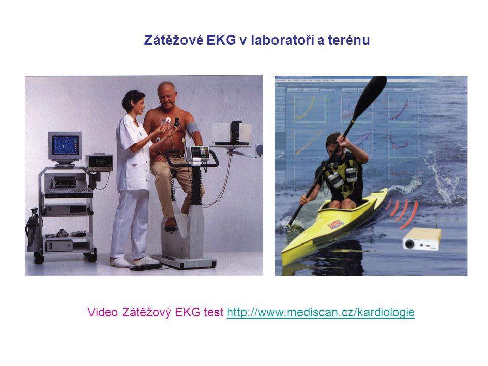 Normální EKG křivka při zátěži (www.seiva.cz, 5.2.2012)www.seiva.cz