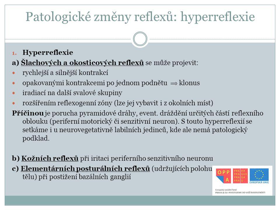 Patologické změny reflexů: hyperreflexie 1. Hyperreflexie a) Šlachových a okosticových reflexů se může projevit: rychlejší a silnější kontrakcí opakov