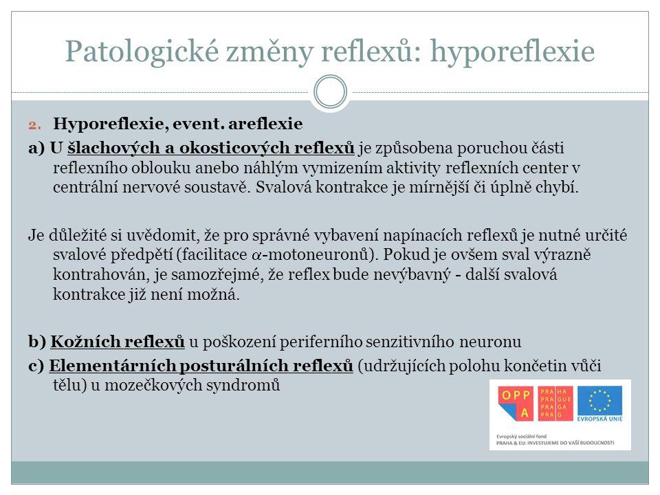 Patologické změny reflexů: hyporeflexie 2. Hyporeflexie, event. areflexie a) U šlachových a okosticových reflexů je způsobena poruchou části reflexníh