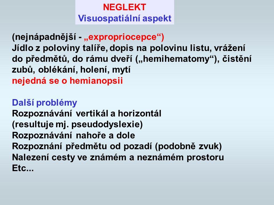 """Proč převažuje na """"nedominatní straně Nedominatní hemisféra """"zpracovává prostor z obou stran - při lézi výraznější deficit Nedominatní hemisféra je specializovanější pro prostorové úlohy Poměrně často disociace - různé projevy neglektu P/L) A TAKÉ Syndrom je PODDIAGNOSTIKOVÁN (a funkčně nedoléčen) jak celkově, tak jeho projevy na dominantní straně"""