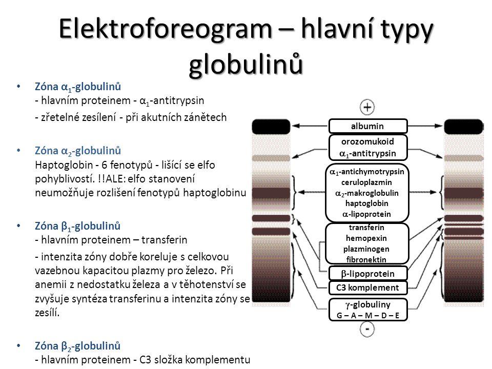Elektroforeogram – hlavní typy globulinů Zóna α 1 -globulinů - hlavním proteinem - α 1 -antitrypsin - zřetelné zesílení - při akutních zánětech Zóna α