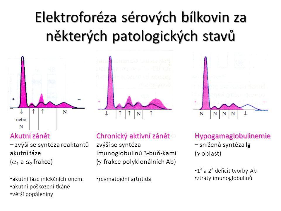 Elektroforéza sérových bílkovin za některých patologických stavů Akutní zánět – zvýší se syntéza reaktantů akutní fáze (  1 a  2 frakce) akutní fáze
