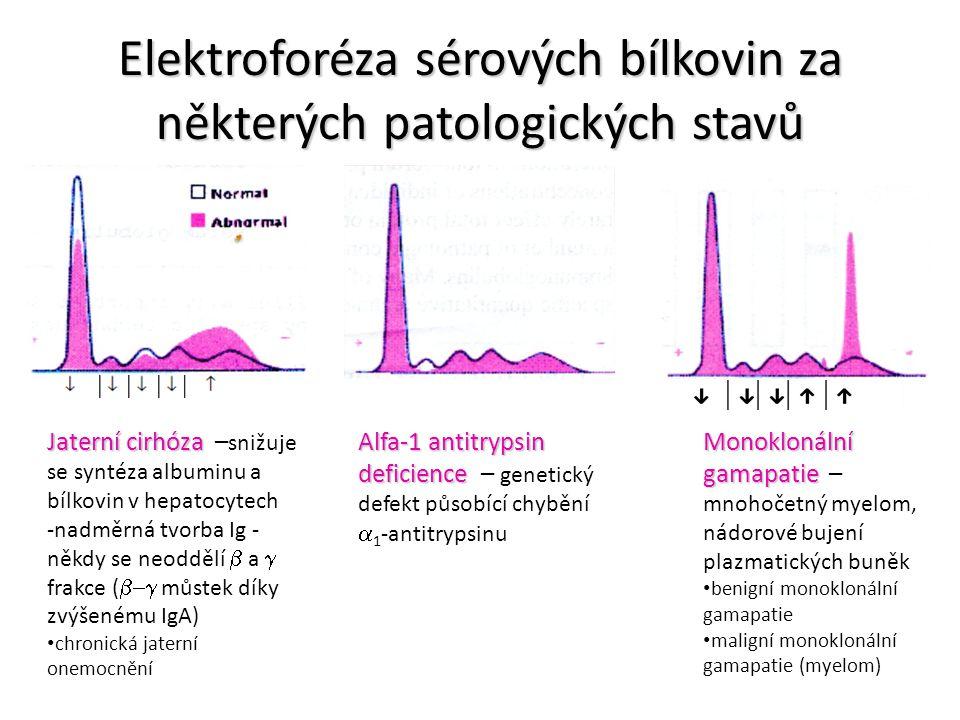 Elektroforéza sérových bílkovin za některých patologických stavů Jaterní cirhóza Jaterní cirhóza – snižuje se syntéza albuminu a bílkovin v hepatocyte