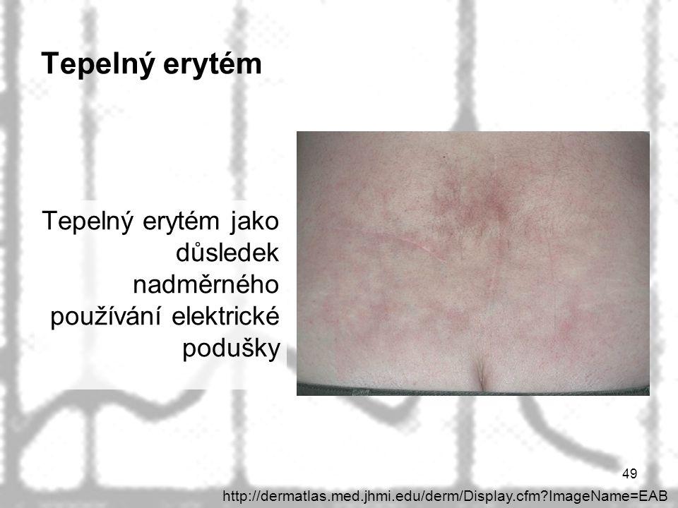 49 Tepelný erytém Tepelný erytém jako důsledek nadměrného používání elektrické podušky http://dermatlas.med.jhmi.edu/derm/Display.cfm?ImageName=EAB