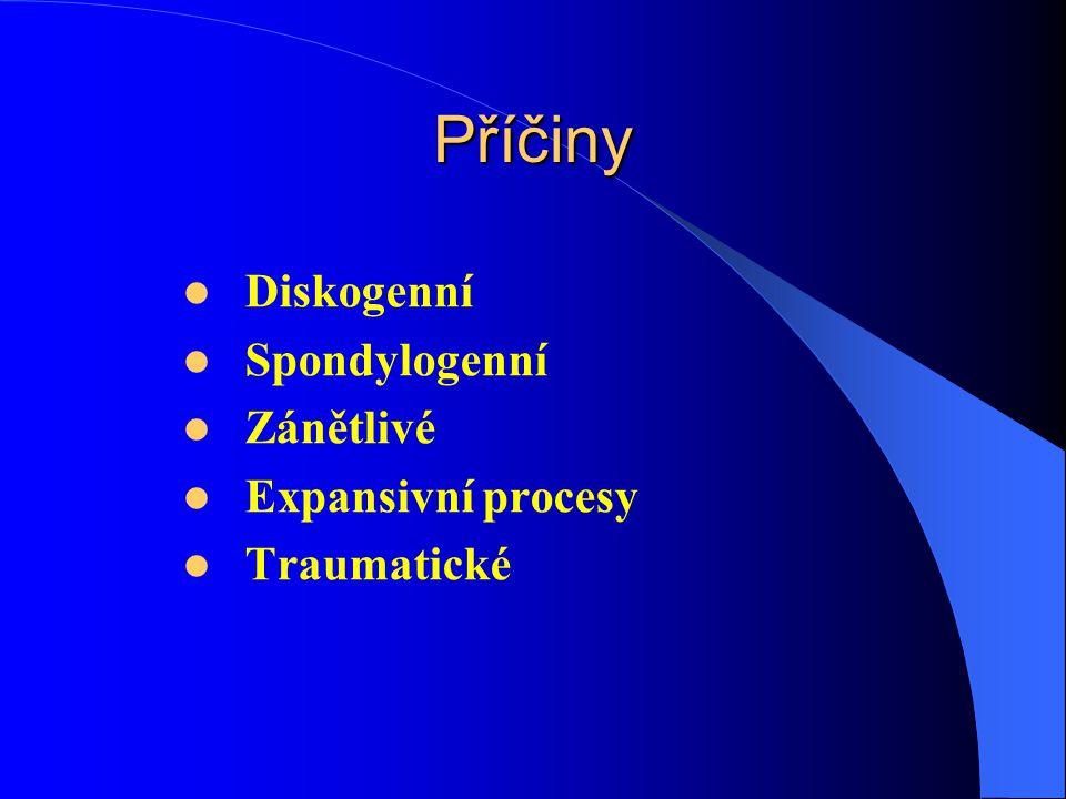 Příčiny Diskogenní Spondylogenní Zánětlivé Expansivní procesy Traumatické