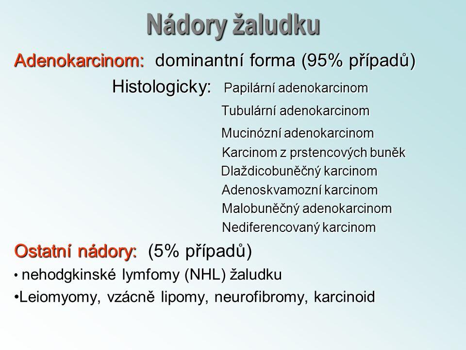 Nádory žaludku Adenokarcinom: dominantní forma (95% případů) Histologicky: Papilární adenokarcinom Histologicky: Papilární adenokarcinom Tubulární ade