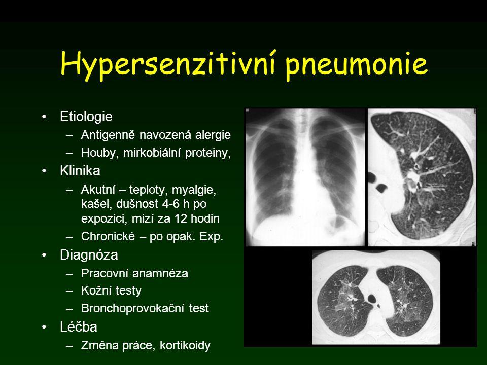 Hypersenzitivní pneumonie Etiologie –Antigenně navozená alergie –Houby, mirkobiální proteiny, Klinika –Akutní – teploty, myalgie, kašel, dušnost 4-6 h