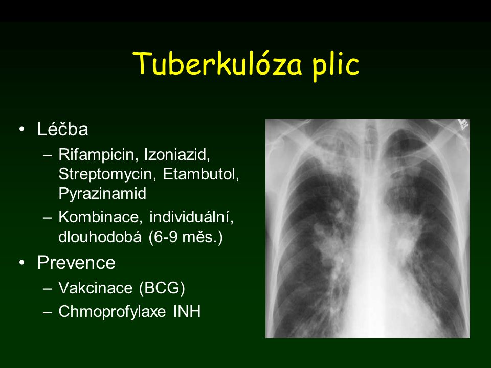 Tuberkulóza plic Léčba –Rifampicin, Izoniazid, Streptomycin, Etambutol, Pyrazinamid –Kombinace, individuální, dlouhodobá (6-9 měs.) Prevence –Vakcinac