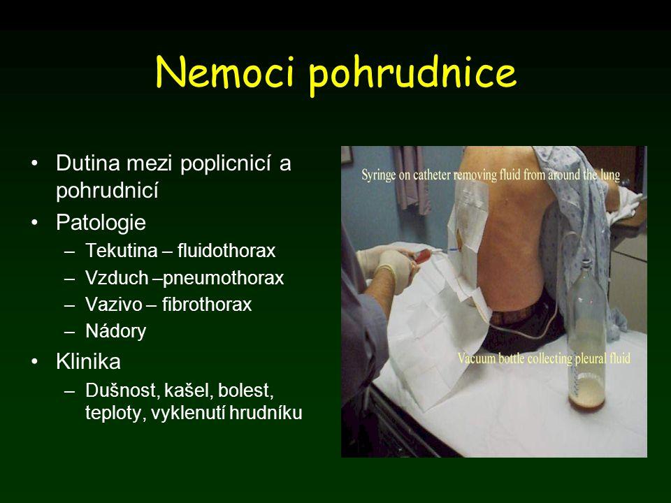 Nemoci pohrudnice Dutina mezi poplicnicí a pohrudnicí Patologie –Tekutina – fluidothorax –Vzduch –pneumothorax –Vazivo – fibrothorax –Nádory Klinika –
