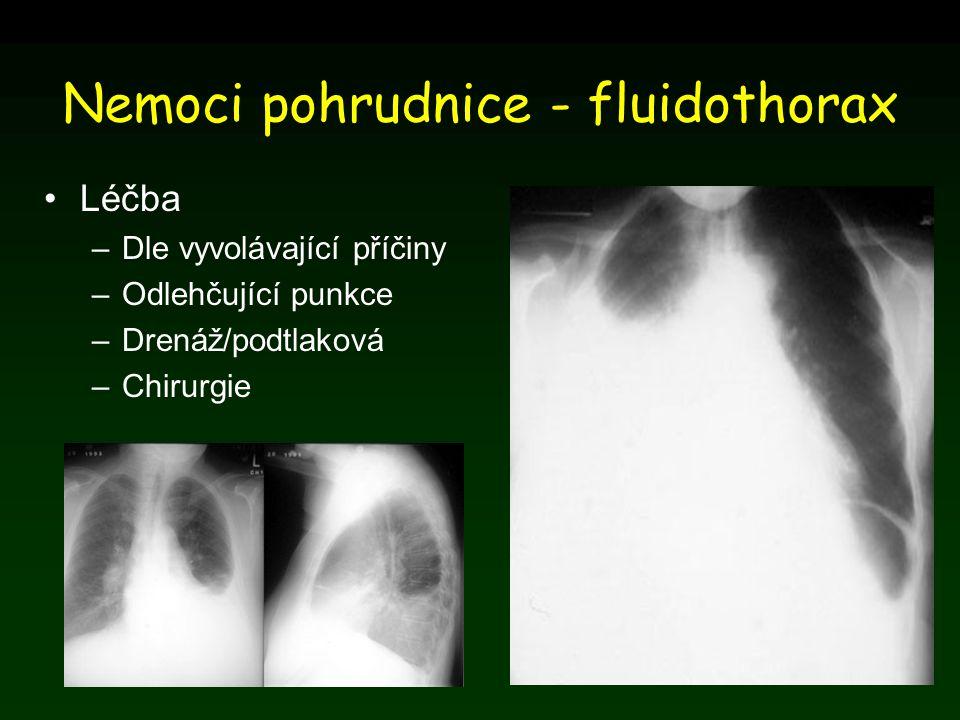 Nemoci pohrudnice - fluidothorax Léčba –Dle vyvolávající příčiny –Odlehčující punkce –Drenáž/podtlaková –Chirurgie