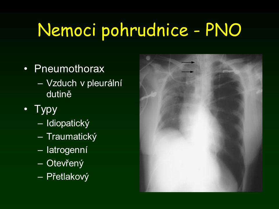 Nemoci pohrudnice - PNO Pneumothorax –Vzduch v pleurální dutině Typy –Idiopatický –Traumatický –Iatrogenní –Otevřený –Přetlakový