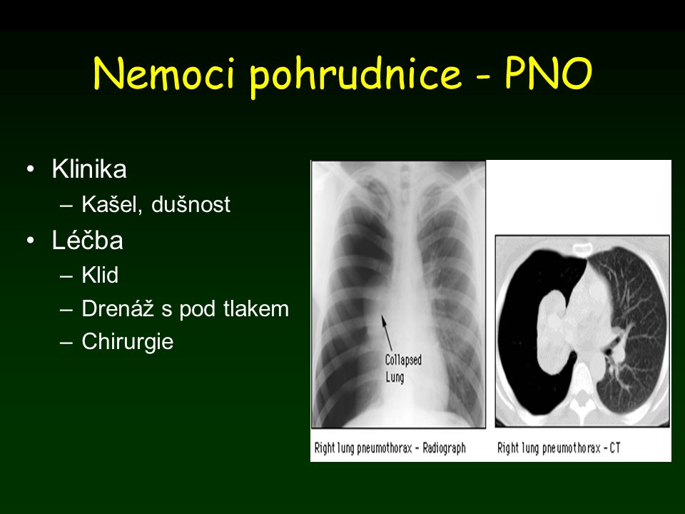 Nemoci pohrudnice - PNO Klinika –Kašel, dušnost Léčba –Klid –Drenáž s pod tlakem –Chirurgie