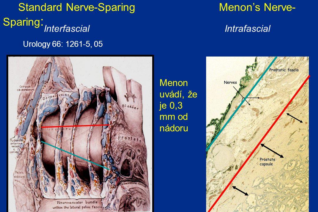 Standard Nerve-Sparing Menon's Nerve- Sparing : Urology 66: 1261-5, 05 Interfascial Intrafascial Menon uvádí, že je 0,3 mm od nádoru