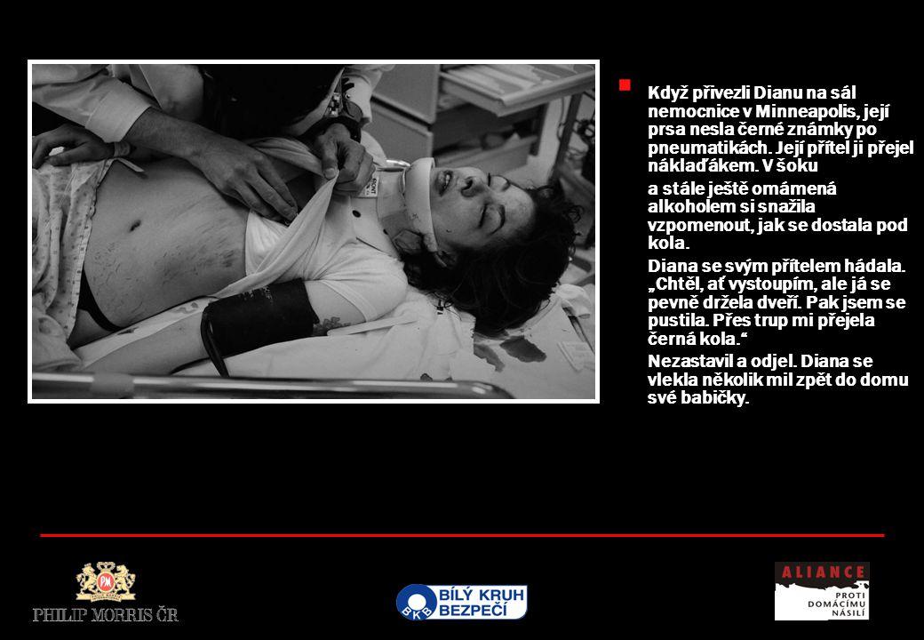  Když přivezli Dianu na sál nemocnice v Minneapolis, její prsa nesla černé známky po pneumatikách.
