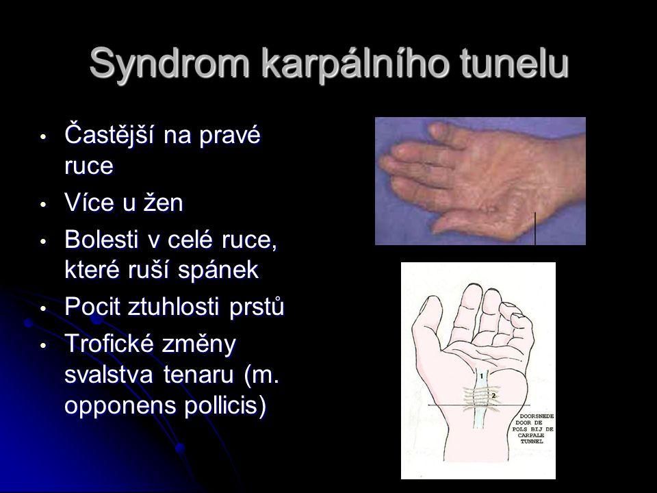Syndrom karpálního tunelu Častější na pravé ruce Častější na pravé ruce Více u žen Více u žen Bolesti v celé ruce, které ruší spánek Bolesti v celé ruce, které ruší spánek Pocit ztuhlosti prstů Pocit ztuhlosti prstů Trofické změny svalstva tenaru (m.