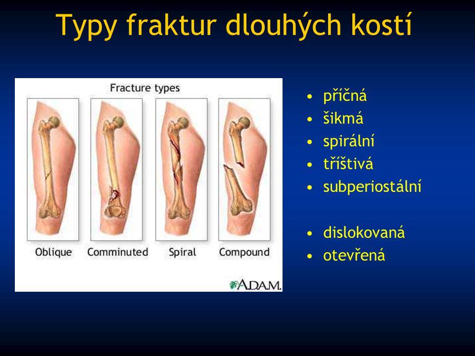 Typy fraktur dlouhých kostí příčná šikmá spirální tříštivá subperiostální dislokovaná otevřená