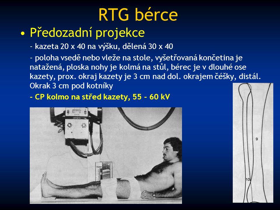 RTG bérce Předozadní projekce - kazeta 20 x 40 na výšku, dělená 30 x 40 - poloha vsedě nebo vleže na stole, vyšetřovaná končetina je natažená, ploska