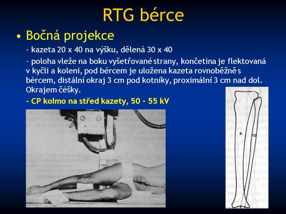 RTG bérce Bočná projekce - kazeta 20 x 40 na výšku, dělená 30 x 40 - poloha vleže na boku vyšetřované strany, končetina je flektovaná v kyčli a koleni