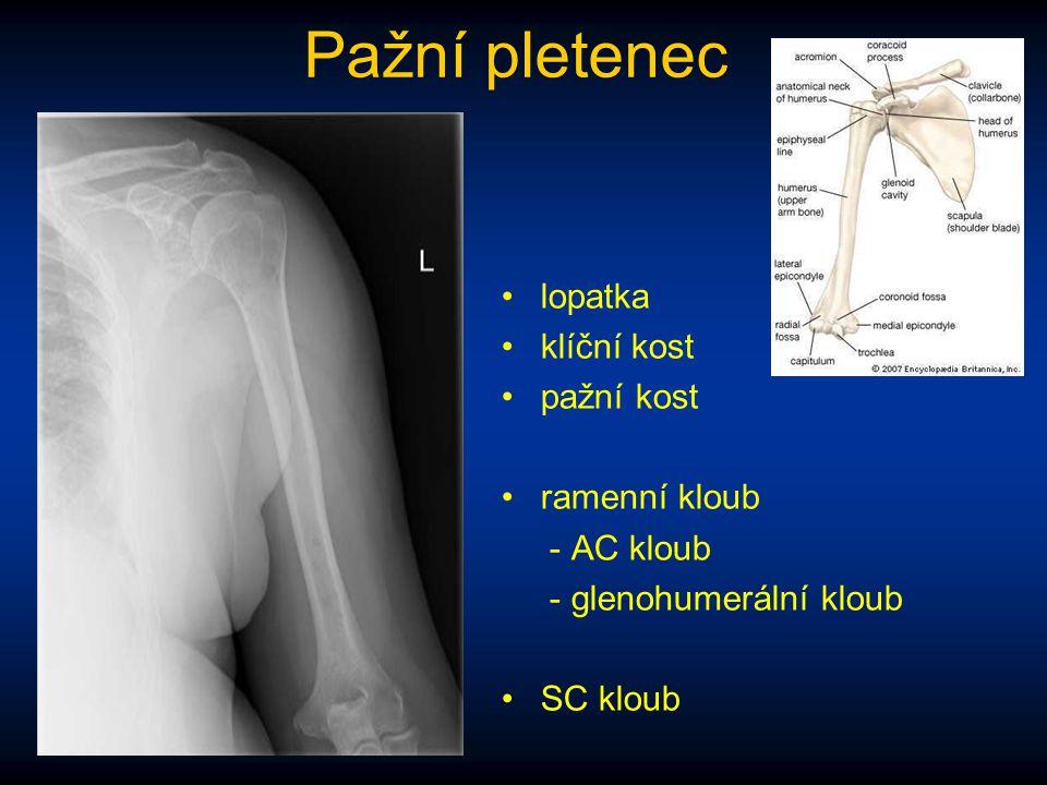 Pažní pletenec lopatka klíční kost pažní kost ramenní kloub - AC kloub - glenohumerální kloub SC kloub
