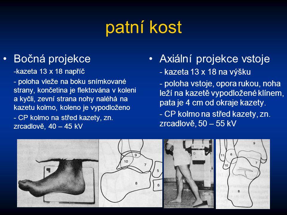 patní kost Bočná projekce -kazeta 13 x 18 napříč - poloha vleže na boku snímkované strany, končetina je flektována v koleni a kyčli, zevní strana nohy
