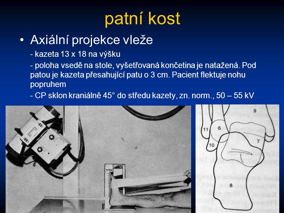 patní kost Axiální projekce vleže - kazeta 13 x 18 na výšku - poloha vsedě na stole, vyšetřovaná končetina je natažená. Pod patou je kazeta přesahujíc