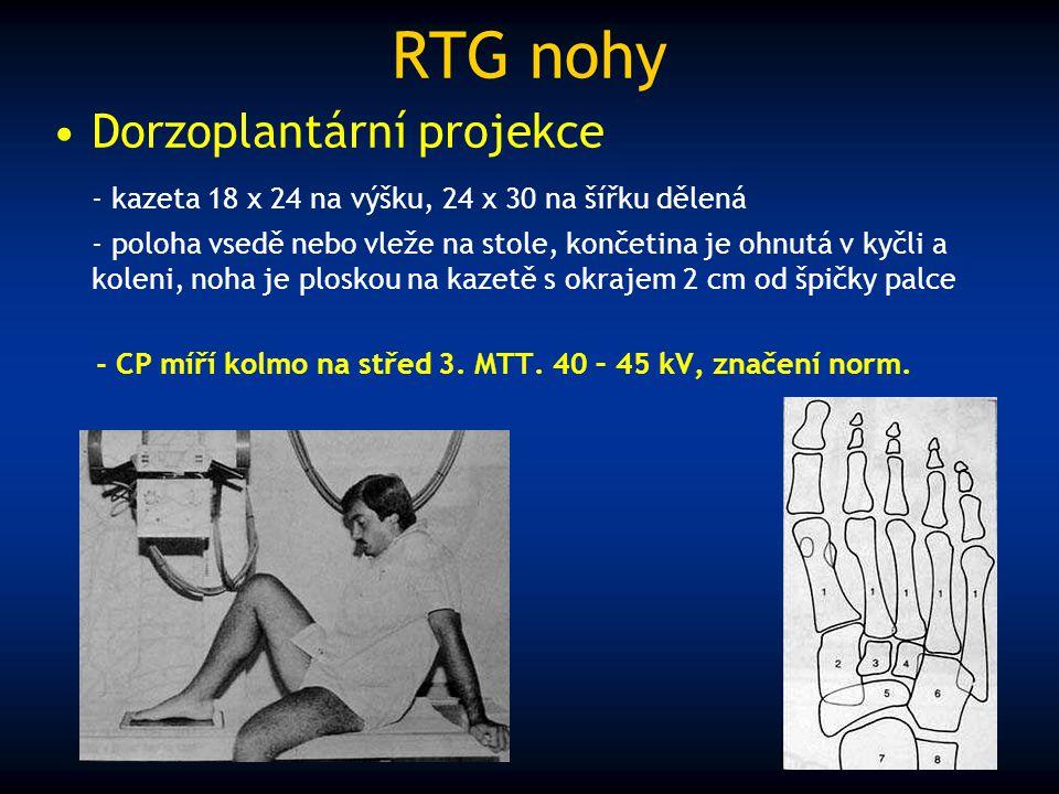 RTG nohy Dorzoplantární projekce - kazeta 18 x 24 na výšku, 24 x 30 na šířku dělená - poloha vsedě nebo vleže na stole, končetina je ohnutá v kyčli a