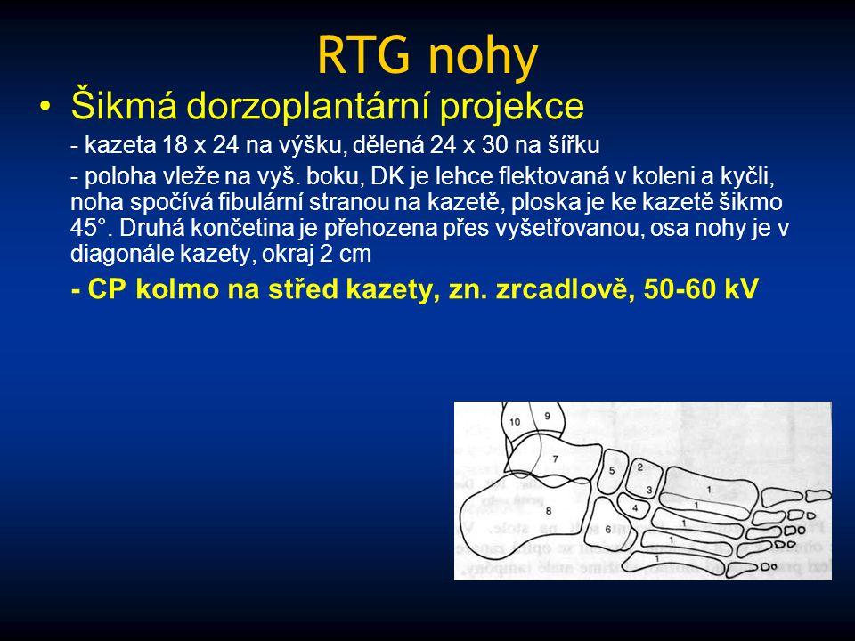 RTG nohy Šikmá dorzoplantární projekce - kazeta 18 x 24 na výšku, dělená 24 x 30 na šířku - poloha vleže na vyš. boku, DK je lehce flektovaná v koleni