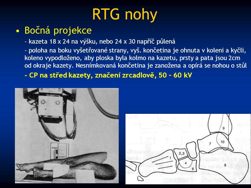 RTG nohy Bočná projekce - kazeta 18 x 24 na výšku, nebo 24 x 30 napříč půlená - poloha na boku vyšetřované strany, vyš. končetina je ohnuta v koleni a