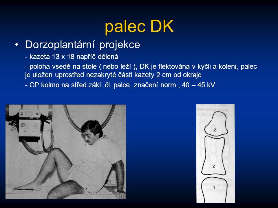 palec DK Dorzoplantární projekce - kazeta 13 x 18 napříč dělená - poloha vsedě na stole ( nebo leží ), DK je flektována v kyčli a koleni, palec je ulo