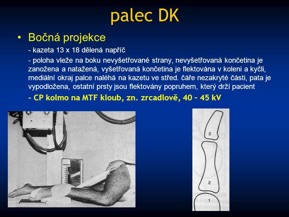palec DK Bočná projekce - kazeta 13 x 18 dělená napříč - poloha vleže na boku nevyšetřované strany, nevyšetřovaná končetina je zanožena a natažená, vy