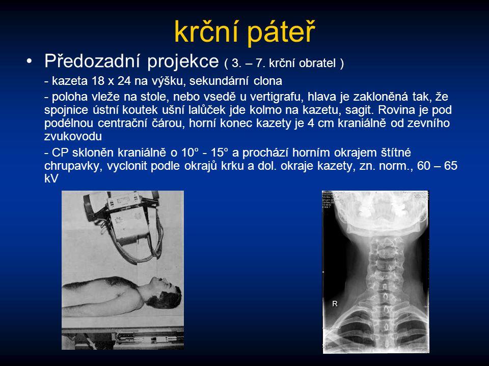 krční páteř Předozadní projekce ( 3. – 7. krční obratel ) - kazeta 18 x 24 na výšku, sekundární clona - poloha vleže na stole, nebo vsedě u vertigrafu