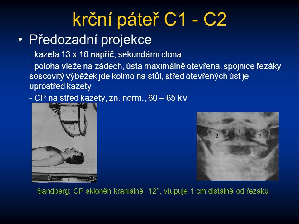 krční páteř C1 - C2 Předozadní projekce - kazeta 13 x 18 napříč, sekundární clona - poloha vleže na zádech, ústa maximálně otevřena, spojnice řezáky s