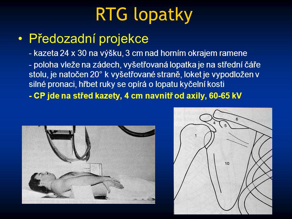 RTG lopatky Předozadní projekce - kazeta 24 x 30 na výšku, 3 cm nad horním okrajem ramene - poloha vleže na zádech, vyšetřovaná lopatka je na střední