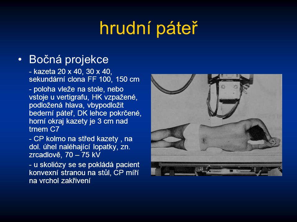 hrudní páteř Bočná projekce - kazeta 20 x 40, 30 x 40, sekundární clona FF 100, 150 cm - poloha vleže na stole, nebo vstoje u vertigrafu, HK vzpažené,