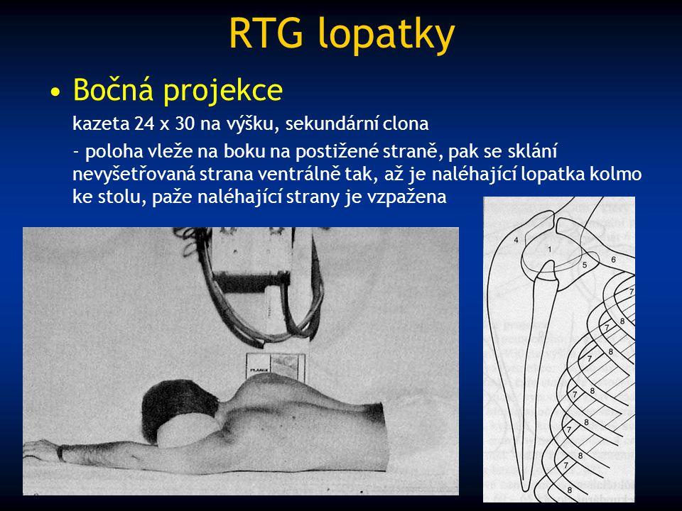 RTG lopatky Bočná projekce kazeta 24 x 30 na výšku, sekundární clona - poloha vleže na boku na postižené straně, pak se sklání nevyšetřovaná strana ve