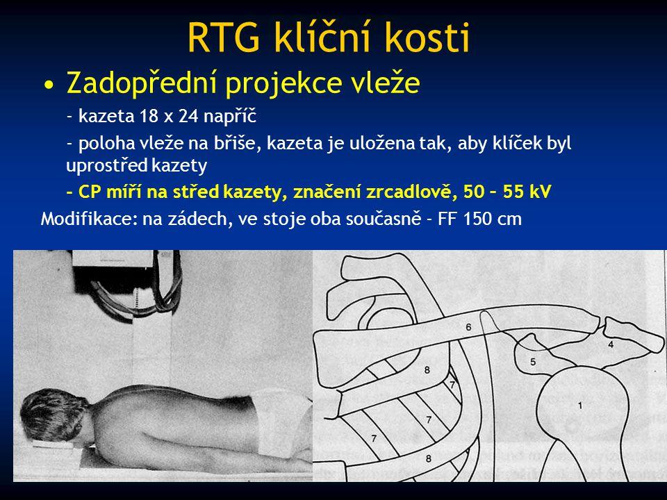 RTG klíční kosti Zadopřední projekce vleže - kazeta 18 x 24 napříč - poloha vleže na břiše, kazeta je uložena tak, aby klíček byl uprostřed kazety - C