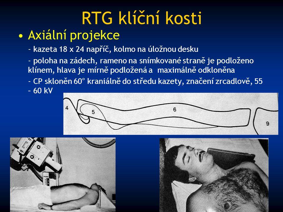 RTG klíční kosti Axiální projekce - kazeta 18 x 24 napříč, kolmo na úložnou desku - poloha na zádech, rameno na snímkované straně je podloženo klínem,