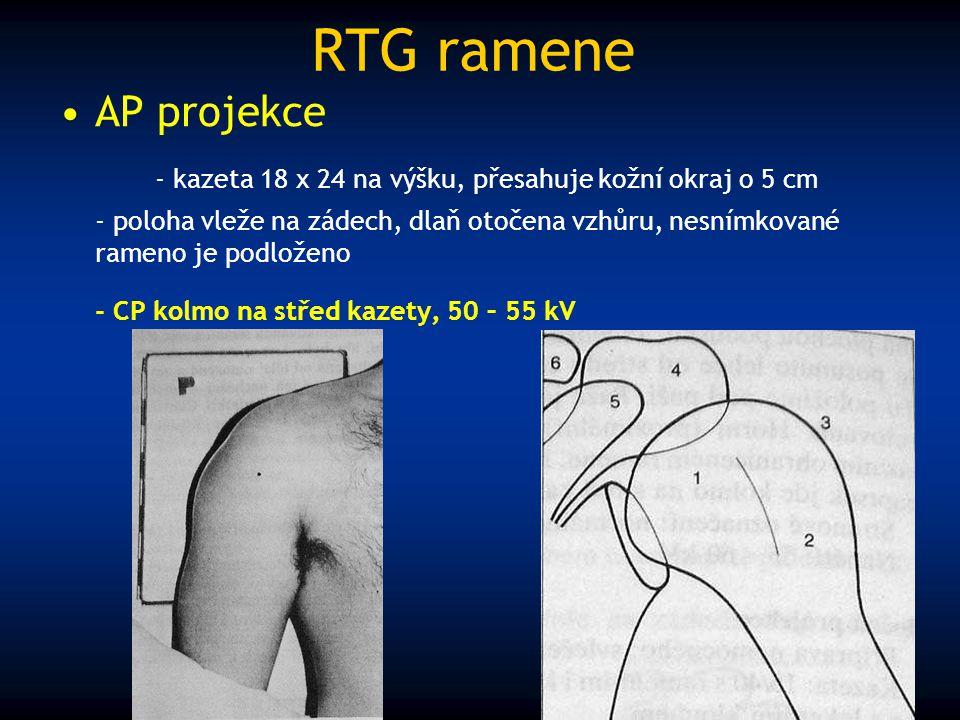 RTG ramene AP projekce - kazeta 18 x 24 na výšku, přesahuje kožní okraj o 5 cm - poloha vleže na zádech, dlaň otočena vzhůru, nesnímkované rameno je p