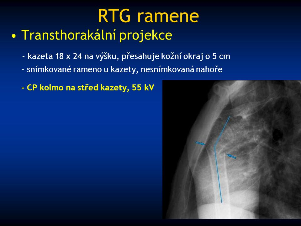 RTG ramene Transthorakální projekce - kazeta 18 x 24 na výšku, přesahuje kožní okraj o 5 cm - snímkované rameno u kazety, nesnímkovaná nahoře - CP kol