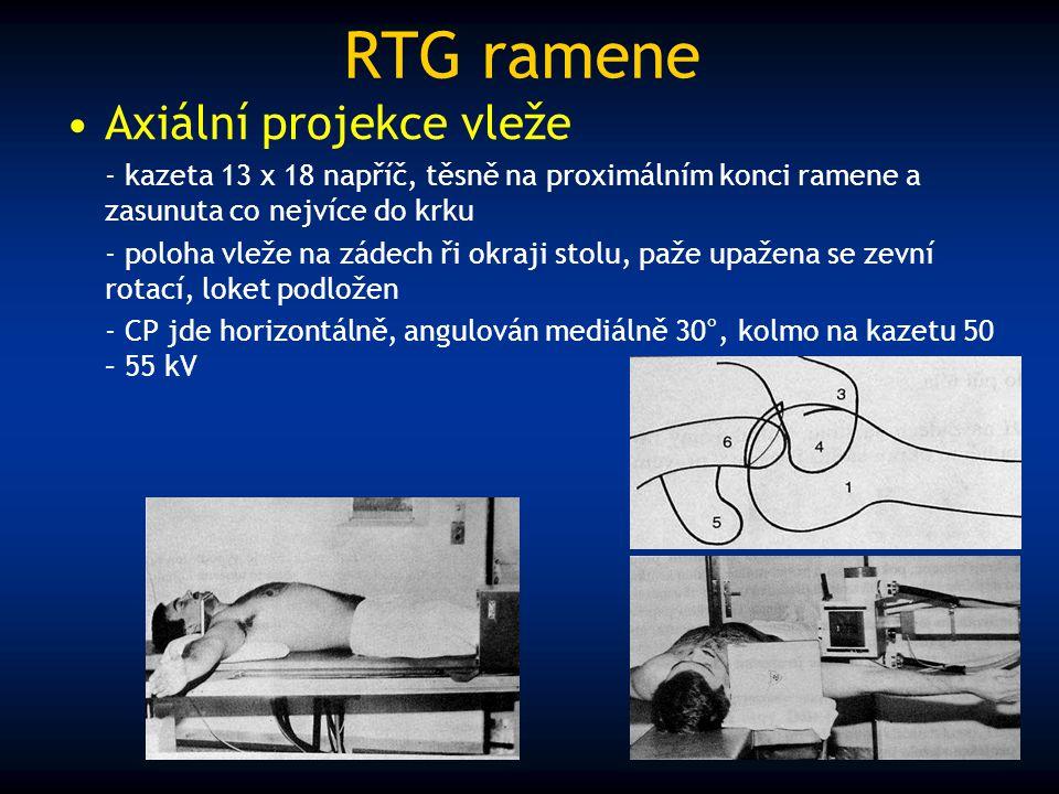 RTG ramene Axiální projekce vleže - kazeta 13 x 18 napříč, těsně na proximálním konci ramene a zasunuta co nejvíce do krku - poloha vleže na zádech ři