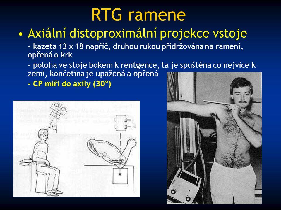 RTG ramene Axiální distoproximální projekce vstoje - kazeta 13 x 18 napříč, druhou rukou přidržována na rameni, opřená o krk - poloha ve stoje bokem k